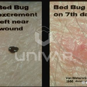 Bed Bug Bite & Excriment