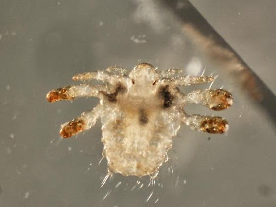 Crab Louse photo by Dr. Bobbi Pritt, http://bugguide.net/node/view/846616
